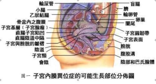 圖一子宮內膜異位症狀的發生部位